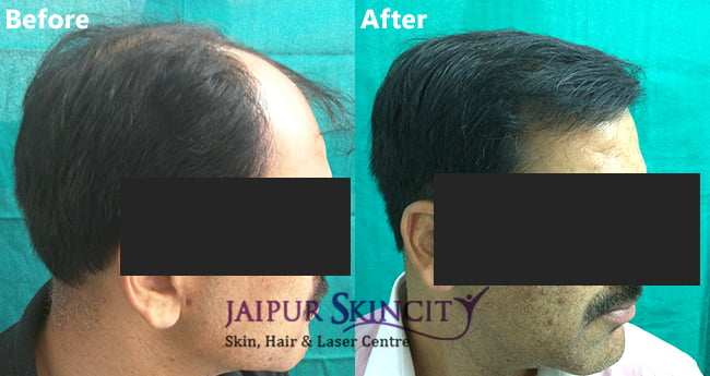 Cost of Hair Transplant in Jaipur