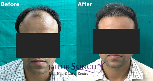 Hair Transplant result in Jaipur