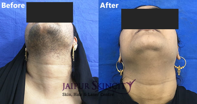 Permanent Laser Hair Removal Treatment Jaipur Skincity