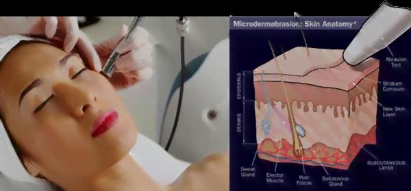 Microdermabrasion-(Skin-Polishing)