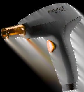 ResurFX-Treatment