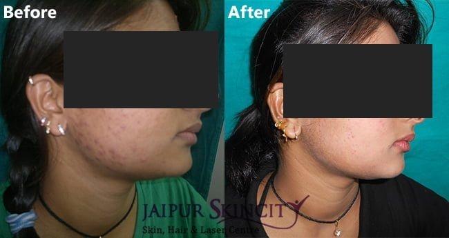 acne01