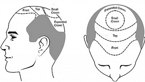 cost-of-hair-transplant-in-jaipur