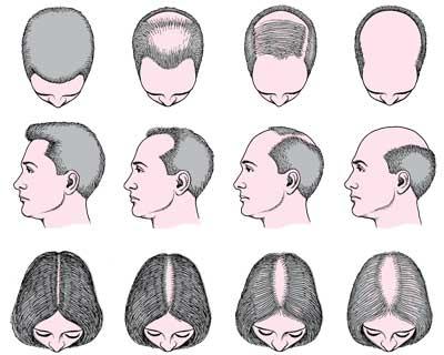 hair-loss-patterns