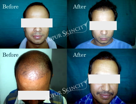 hair-transplant-clients