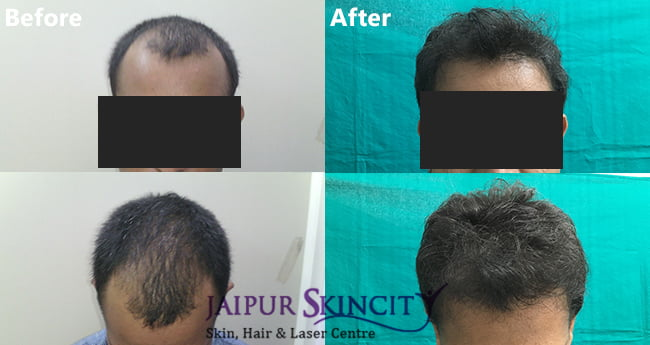 Hair Transplant Cost in Jaipur