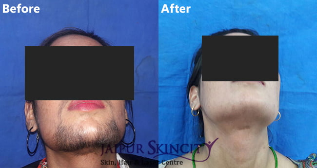 Permanent Laser Hair Removal Treatment - Jaipur Skincity