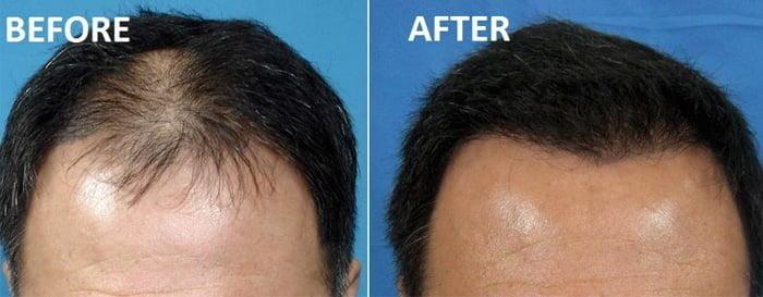prp-hair-loss-jaipur