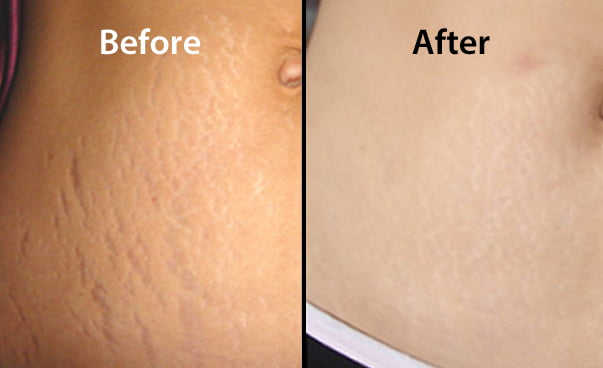Stretch Marks Removal Treatment Via Laser Jaipur Skincity