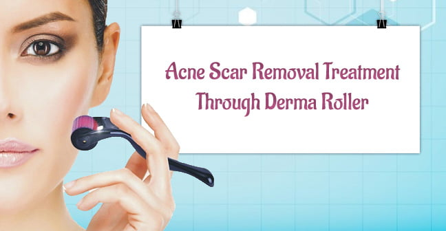 acne scar removal treatment through dermaroller