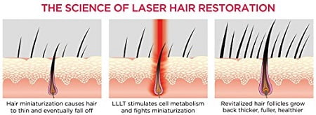 Low Level Laser Therapy For Hair Loss Jaipur Skin City