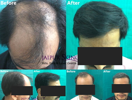 Hair Clinic in Jaipur
