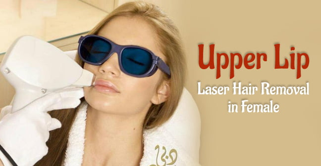 upper lip laser hair removal