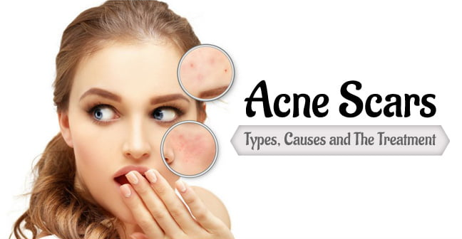 Acne Scars Types, Causes and the Treatment