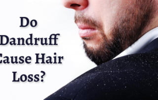 Do Dandruff Cause Hair Loss
