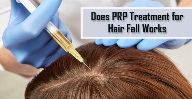 Does-PRP-Treatment-for-Hair-Fall-Works