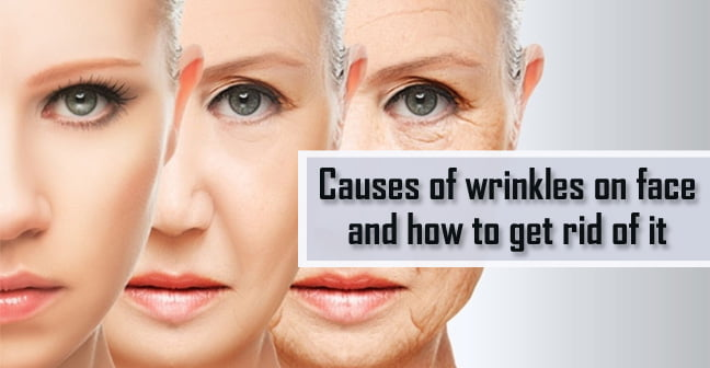 causes of wrinkles on face