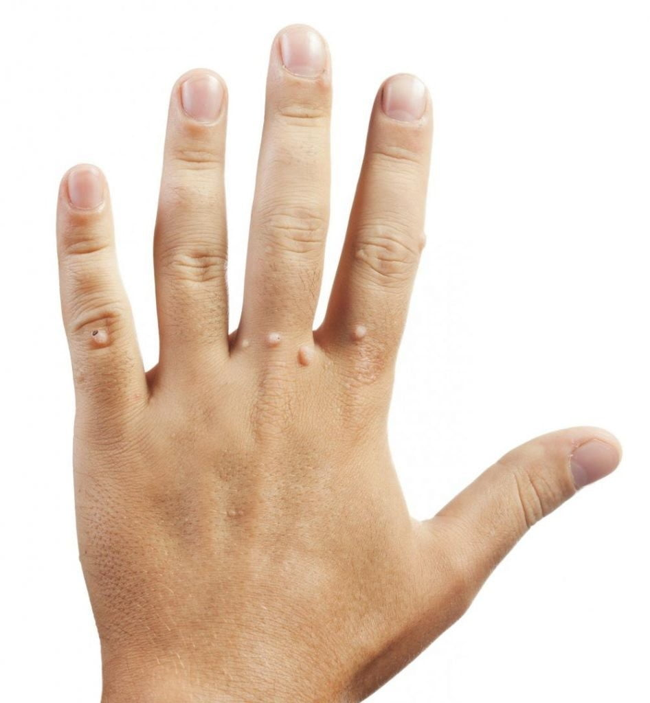 What Causes warts on hands and fingers