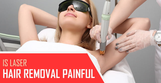 is laser hair removal painful