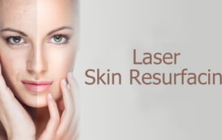 laser skin resurfacing iamge
