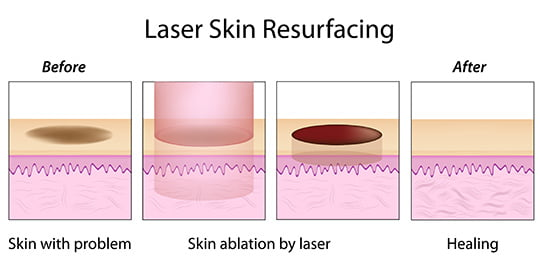 laser skin resurfacing procedure