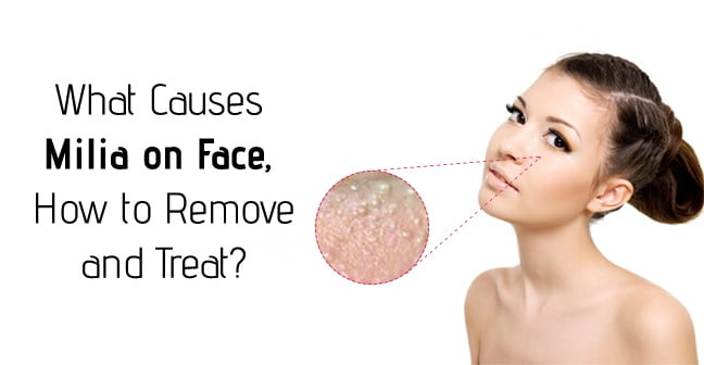 What Causes Milia On Face How To Remove And Treat