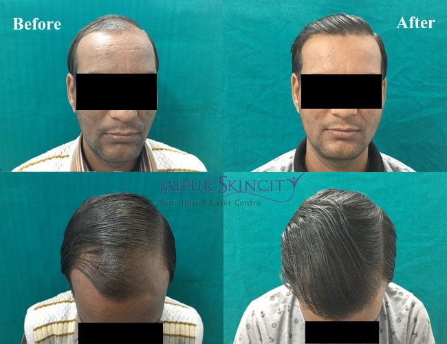hair treatment in Jaipur by Dr. Sachin